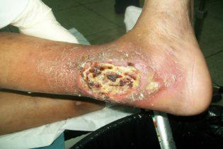 pie-de-diabetico
