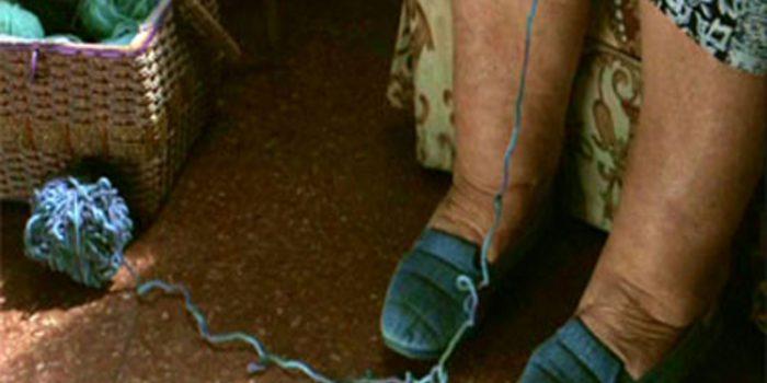 Causas y tratamientos de las piernas hinchadas