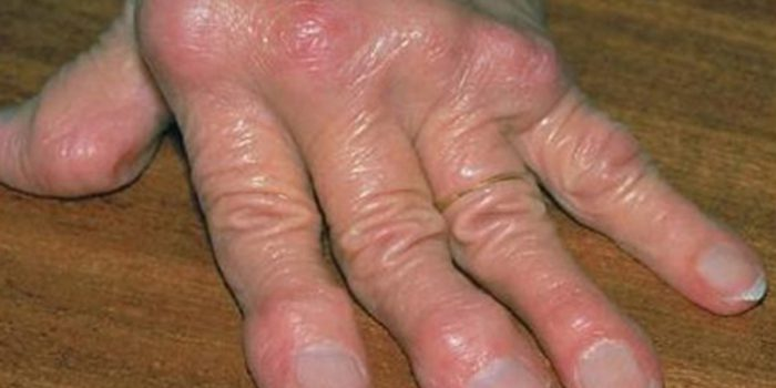 El reuma, causas y remedios naturales