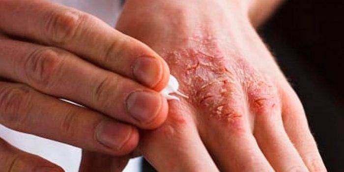 Qué es la sarna, cómo se contagia y cómo se trata