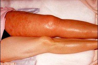 trombosis