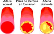 quelacion arterial